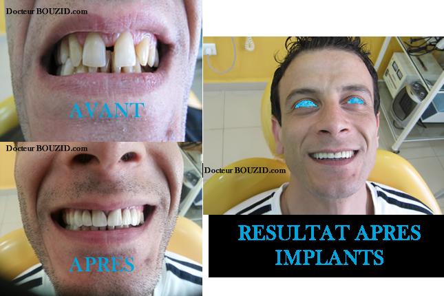 cabinet dentaire dr bouzid implants dentaires blanchiment dentiste alger algerie. Black Bedroom Furniture Sets. Home Design Ideas